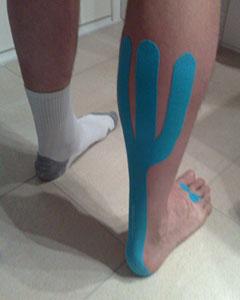 Blaues Kinesio-Tape gegen Achillessehnenbeschwerden